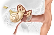 Végre megvan az orvosok válasza a hallásvesztés egyes típusaira