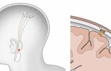 Chipet ültettek egy mozgássérült férfi agyába, számítógép írta le a gondolatait