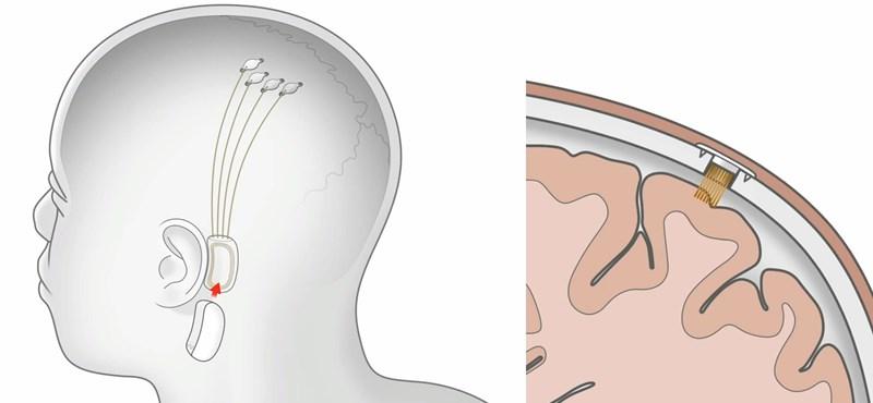 Elon Musk szerint új találmányuk a skizofréniát is képes lesz gyógyítani