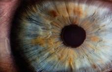 Világelső szemműtét Japánban: iPS-sejtekből származó látósejteket ültettek be