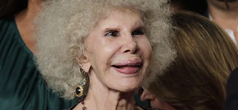 Meghalt az átoperált arcáról híres hercegnő – fotó